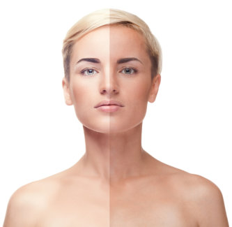 image of a woman with a before and after skin color